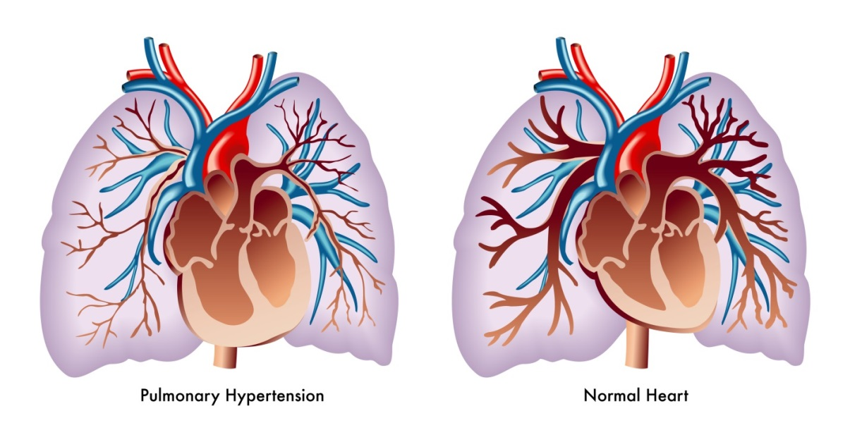 Getting it 'Right': Pulmonary Hypertension in the ED