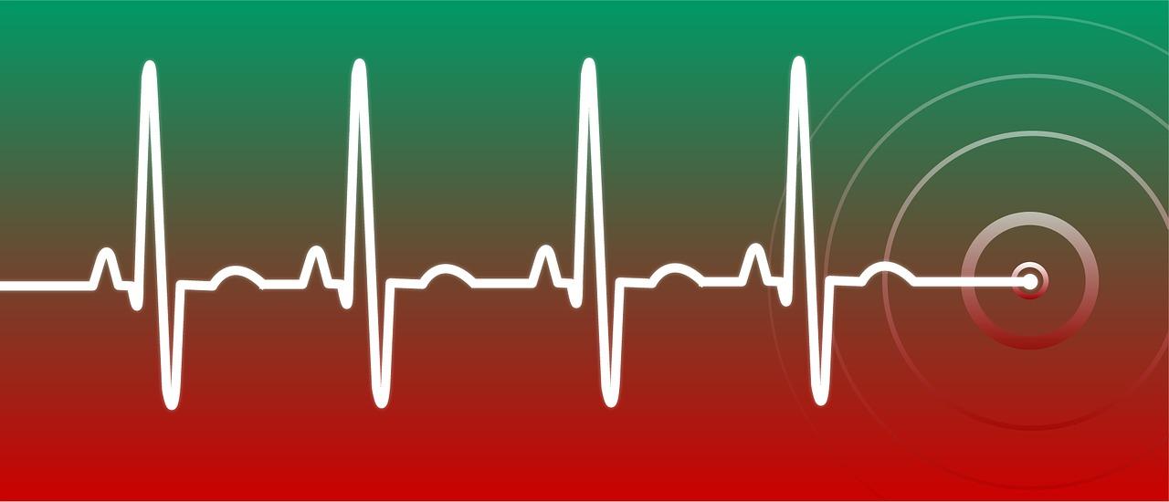 My Heart is Racing! Select Cardiac Arrhythmias in the ED