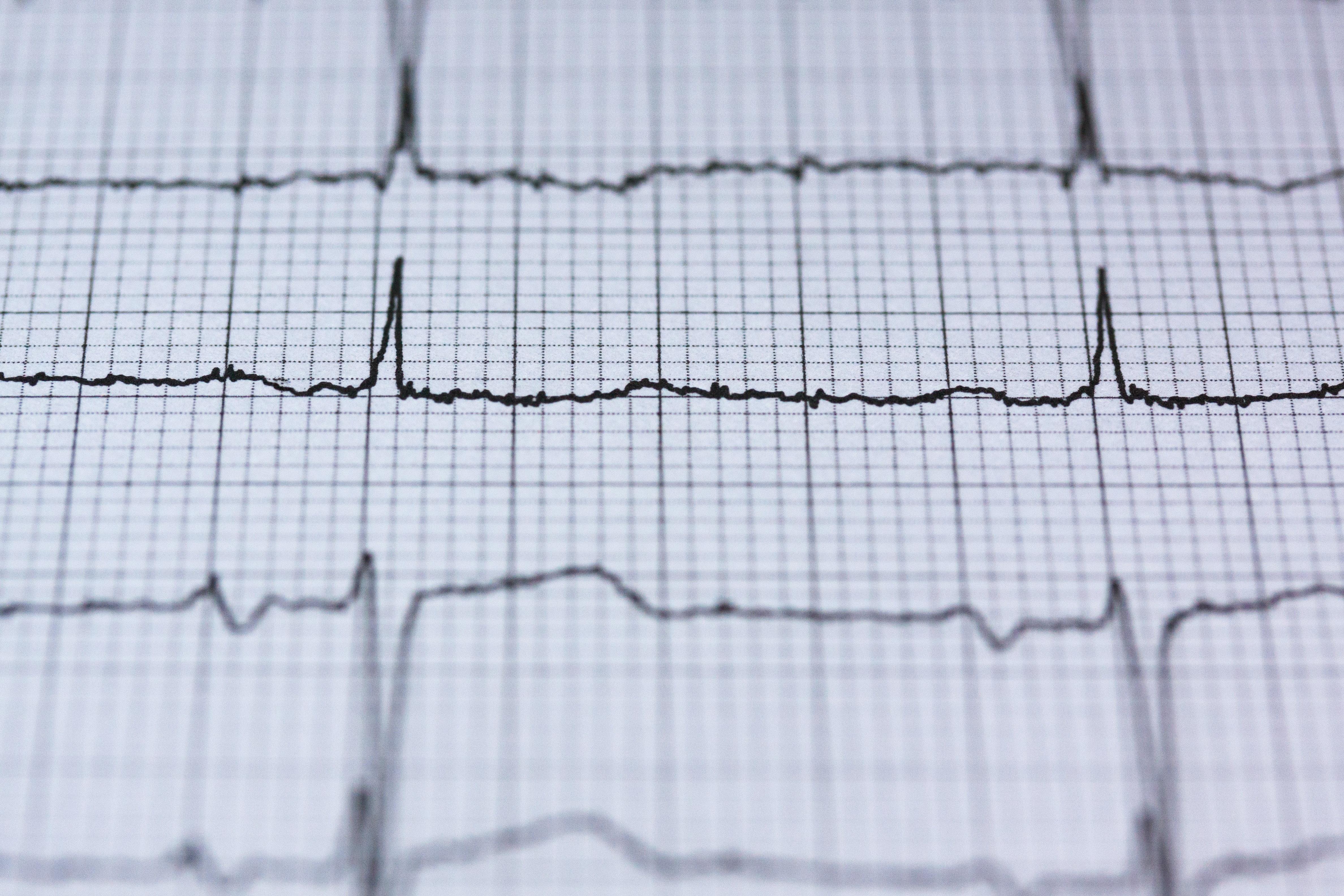 An Update: Rate Control in Atrial Fibrillation