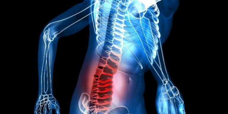 Low Back Pain - a management guide - EMOttawa