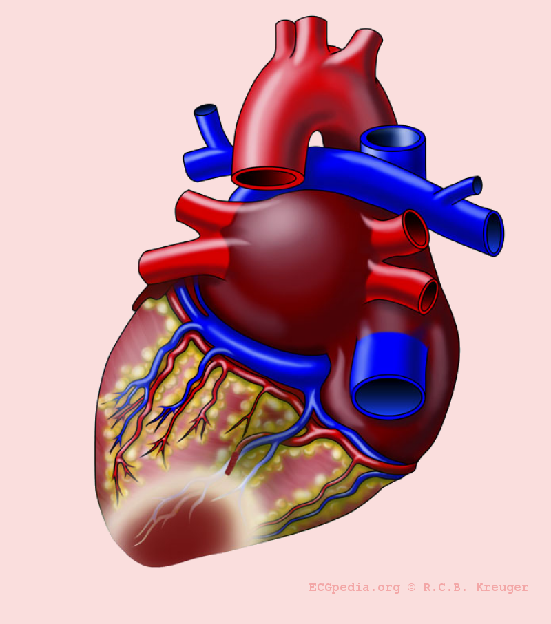 Efficacy of High-Sensitivity Troponin T in Identifying Very-Low-Risk Patients With Possible Acute Coronary Syndrome.