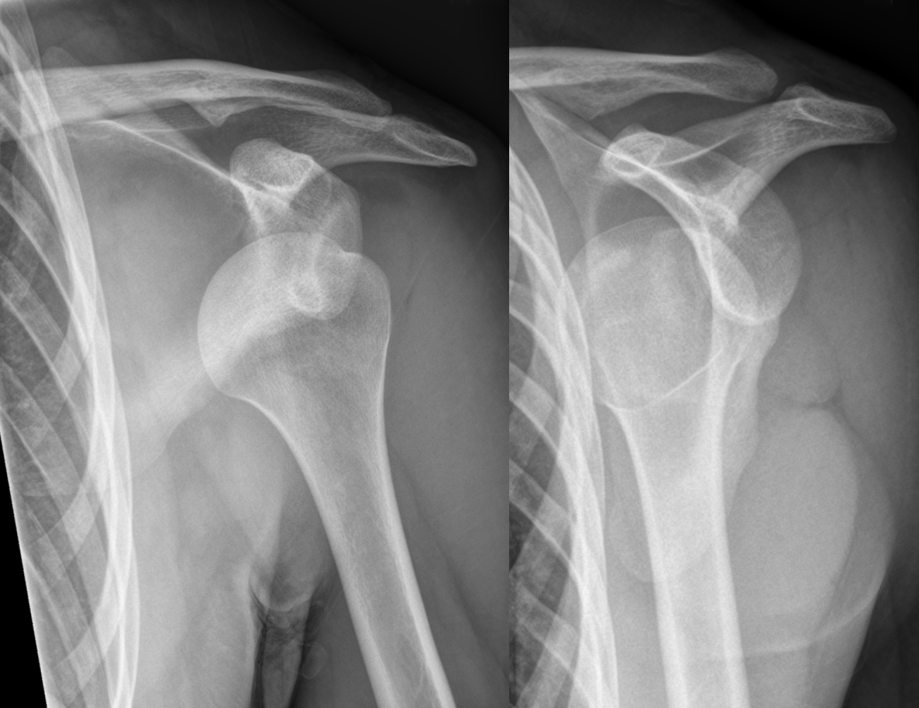 Immobilization in external rotation combined with abduction reduces the risk of recurrence after primary anterior shoulder dislocation