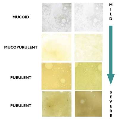 mucoid, purulent, AECOPD