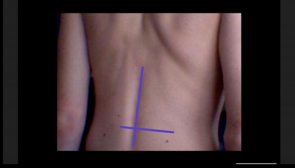 PoCUS Lumbar Puncture