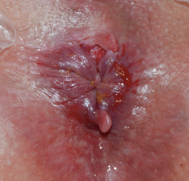 Fissure anal, pics of girls in skimpy clothes