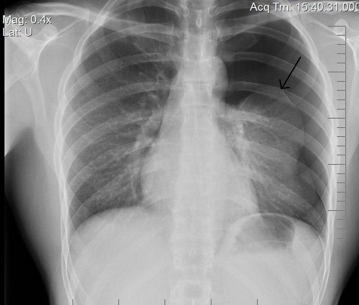 Conservative versus Interventional Treatment for Spontaneous Pneumothorax