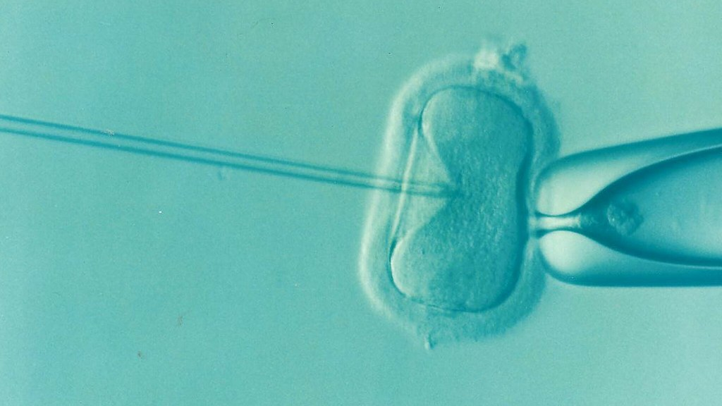 Complications of Assisted Reproductive Technology