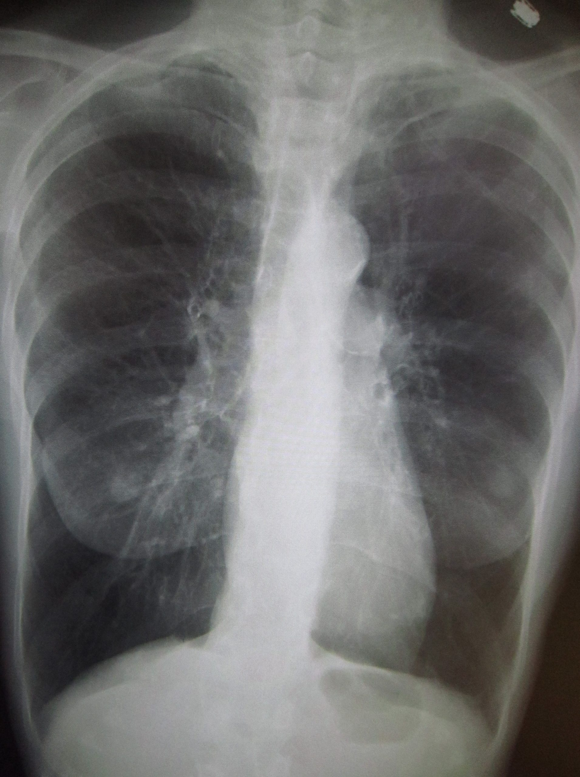 Diagnosis and Outpatient Management of Chronic Obstructive Pulmonary Disease: A Review