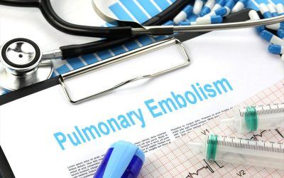 The D-Dimer Dilemma: It's Use In Low-Risk PE