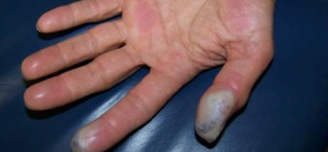 Hydrofluoric Acid Burn