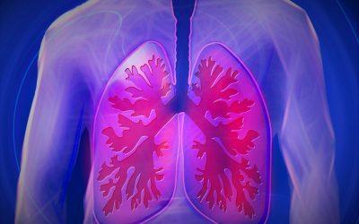 Pneumothorax in the Emergency Department – Part 1