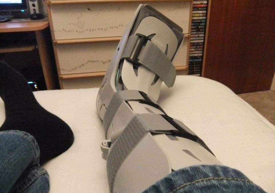 Plaster cast versus functional brace for non-surgical treatment of Achilles tendon rupture (UKSTAR): a multicentre randomised controlled trial and economic evaluation
