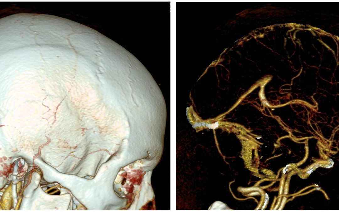 CNS Compartment Syndrome: Cerebral Venous Thrombosis