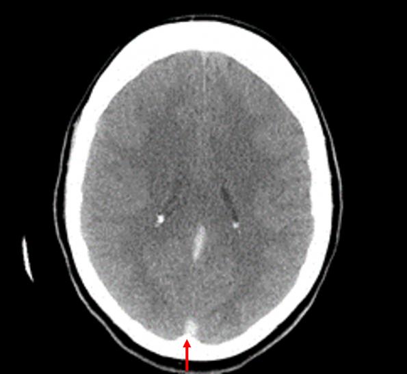 Cerebral venous thrombosis
