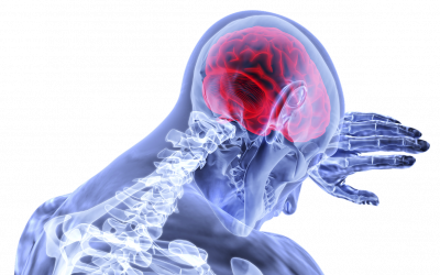 Thrombolytic Therapy: A Stroke of Luck? Part 1