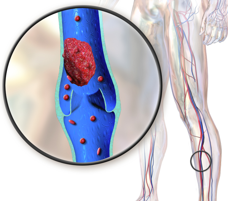 A simplified decision rule to rule out deep vein thrombosis using clinical assessment and D-dimer