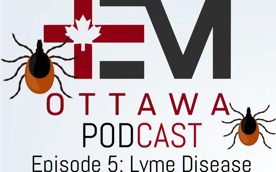 EMOttawa Podcast! Tick Borne Illness Part 1: Lyme Disease