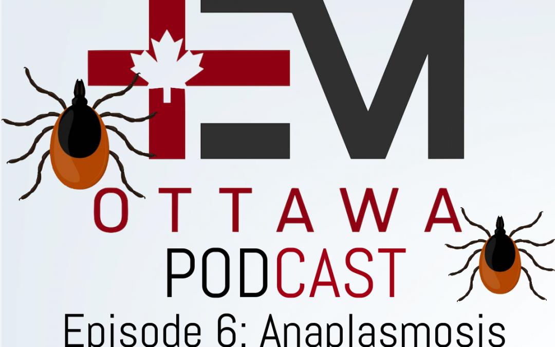 EMOttawa Podcast! Tick Borne Illness Part 2: Anaplasmosis